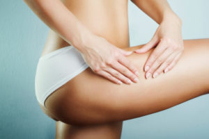 How to finally get rid of cellulite