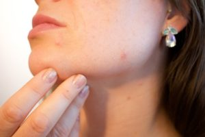 adult acne, home remedy for acne, home remedies for pimples, how to treat acne