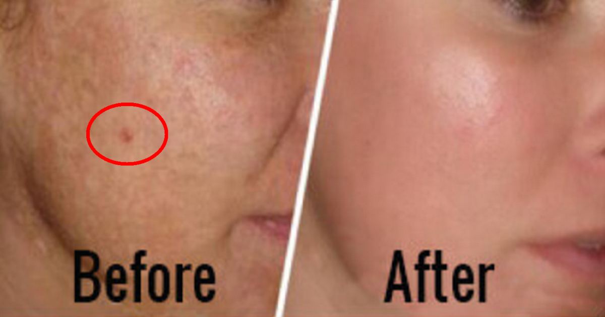 Top 3 Amazing Natural Ingredients for Skin to Get Rid of Dark Brown Spots